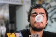 """""""رايتس ووتش"""" تدعو لإلغاء عقوبة استهلاك الحشيش في تونس"""
