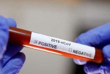 ارتفاع حالات الإصابة بفيروس كورونا إلى 7 على المستوى الوطني