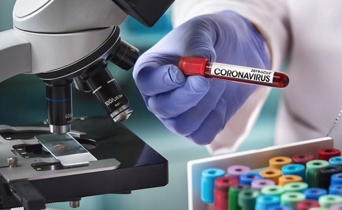 قبلي: تسجيل إصابة جديدة بفيروس كورونا