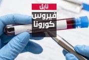 نابل : تسجيل حالة وفاة و28 إصابة جديدة بفيروس كورونا المستجد